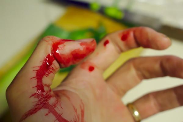 Limpieza de Sangre Barcelona